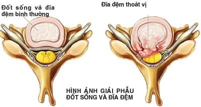 hau-qua-nang-ne-cua-thoat-vi-dia-dem-cot-song-co-3