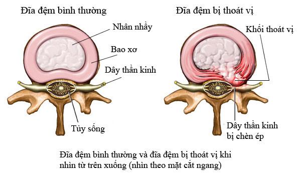 dau-hieu-va-trieu-chung-cua-benh-thoat-vi-dia-dem-cot-song-co-4