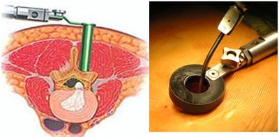 mổ hở thoát vị đĩa đệm cột sống thắt lưng