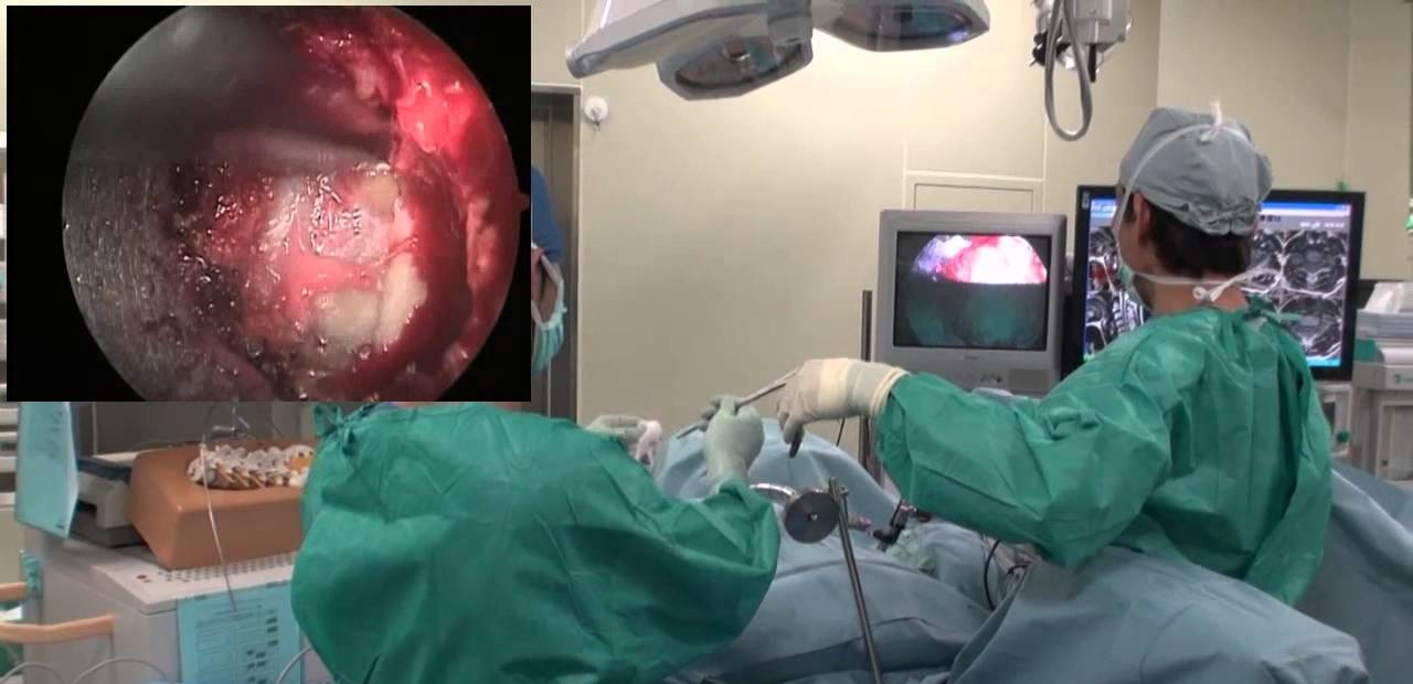 phuong-phap-vi-phau-thuat-loai-bo-nhan-dem-microdiscectomy-1