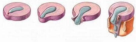 4 giai đoạn của bệnh thoát vị đĩa đệm