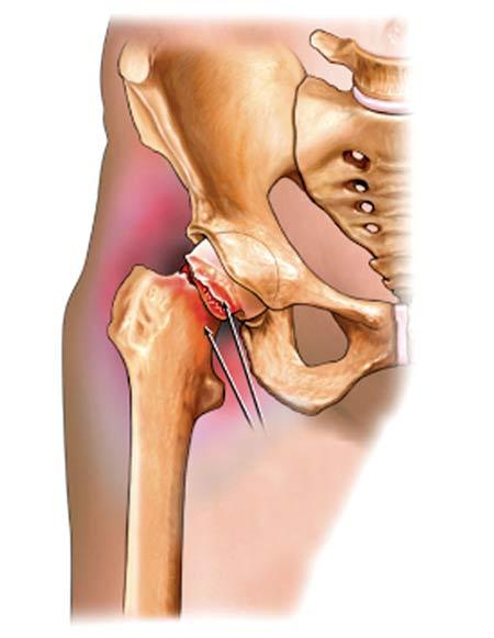 Đau thắt lưng bên trái do viêm khớp háng