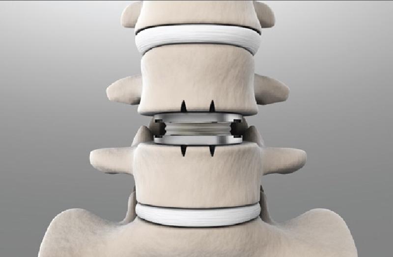Khi nào nên chọn phẫu thuật thay đĩa đệm-2