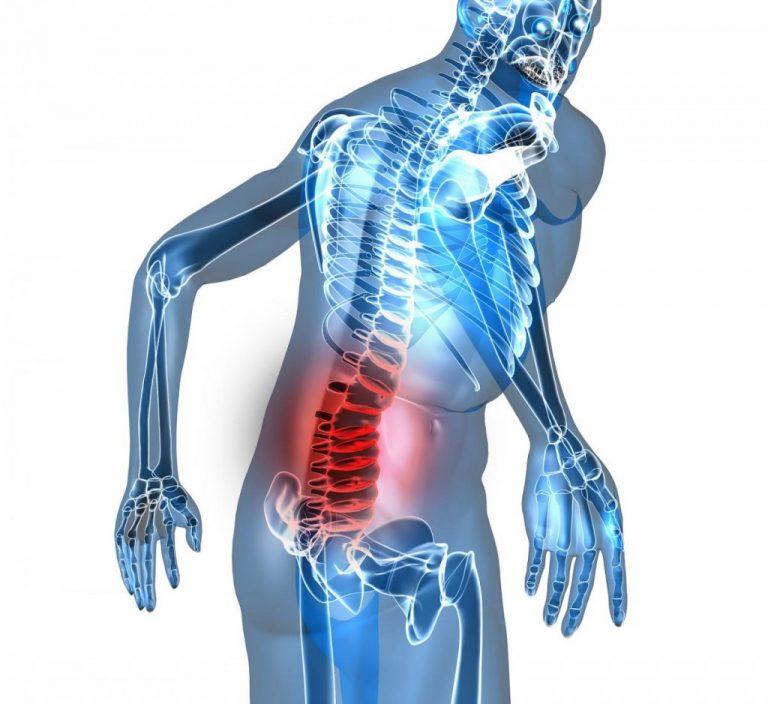 Bị đau lưng có thể chơi những môn thể thao nào ?-1