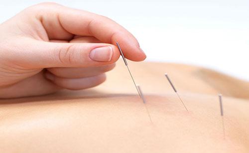 Đẩy lùi cơn đau lưng bằng phương pháp châm cứu-1