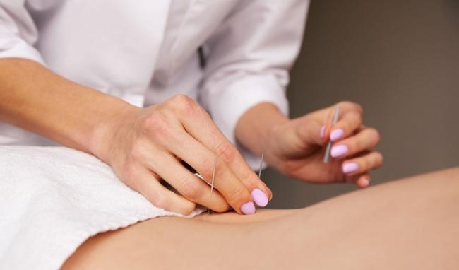 Đẩy lùi cơn đau lưng bằng phương pháp châm cứu-3