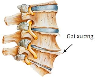 Dấu hiệu nhận biết đau lưng do gai cột sống-1