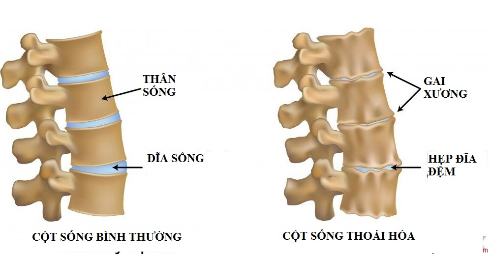 Dấu hiệu nhận biết đau lưng do gai cột sống-2