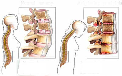 Dấu hiệu nhận biết đau lưng do gai cột sống-3