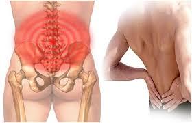 Đau lưng gần mông là triệu chứng bệnh gì ?-1