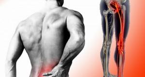 Hiện tượng đau lưng lan xuống chân là bệnh gì?-1