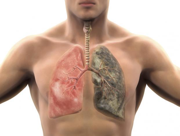 Đau lưng trên nguyên nhân và cách phòng bệnh-2