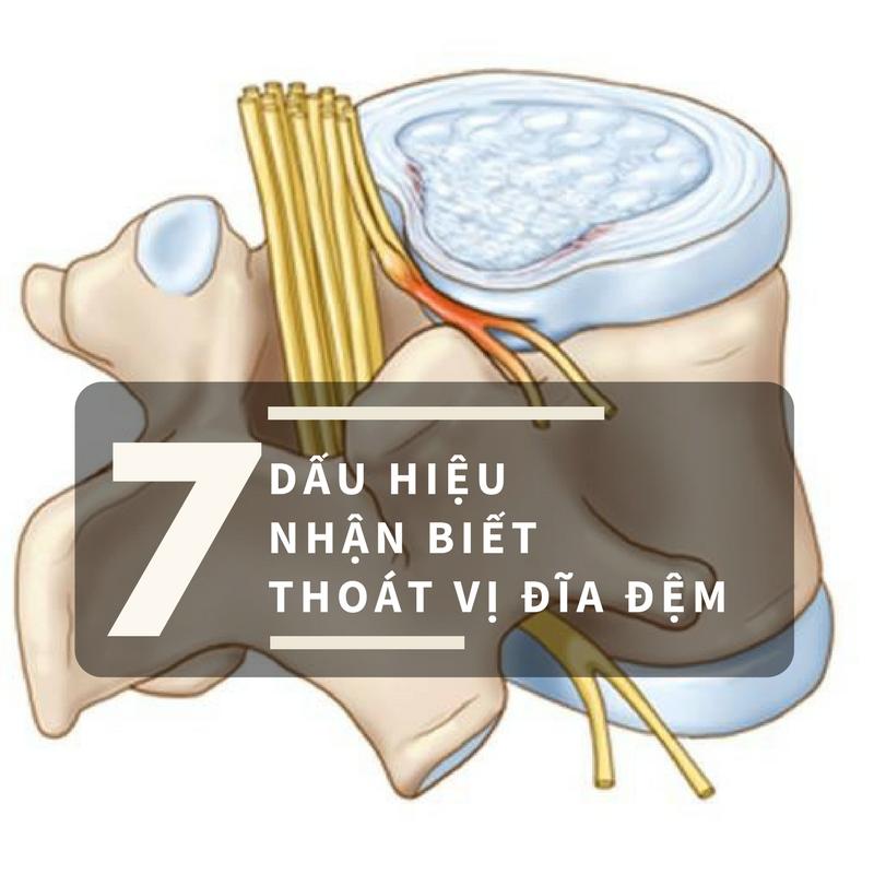 Nhận biết thoát vị đĩa đệm chèn ép rễ thần kinh-1