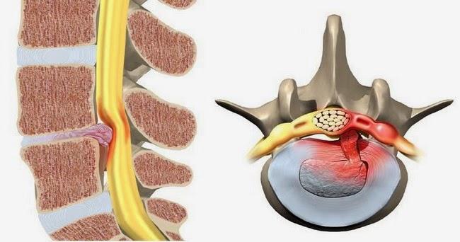 Bệnh án thoát vị đĩa đệm cột sống thắt lưng