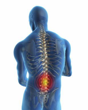viêm đĩa đệm cột sống gây đau