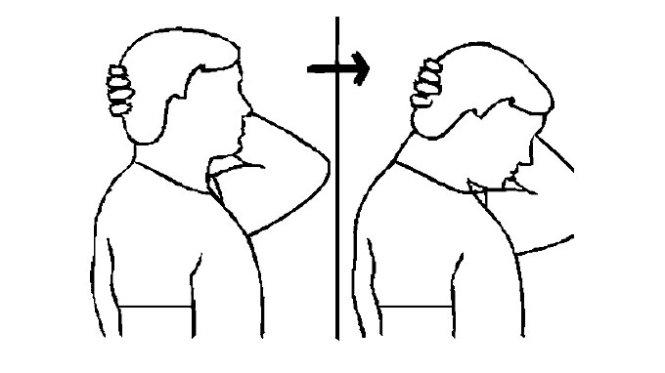 các bài tập chữa thoát vị đĩa đệm cổ