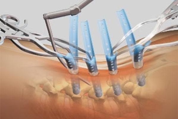Phẫu thuật nẹp vít cột sống lưng