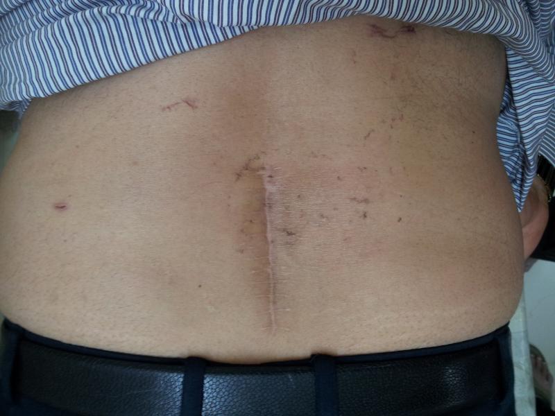 Vết mổ thoát vị đĩa đệm cột sống thắt lưng khi đã lành