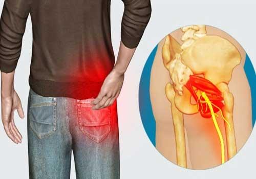 Thoát vị đĩa đệm gây tê mông, đau mông