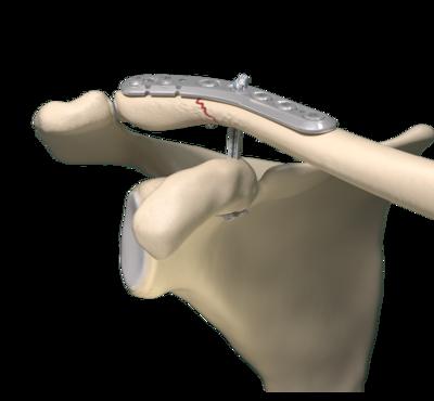 Ốc vít dùng trong phẫu thuật cột sống