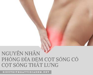 Nguyên nhân phồng đĩa đệm cột sống cổ, cột sống thắt lưng