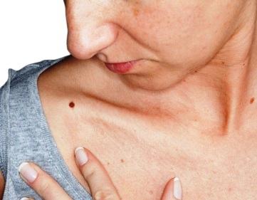 Glucosamine có thể gây dị ứng