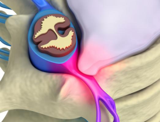 bệnh án thoát vị đĩa đệm cột sống cổ-2