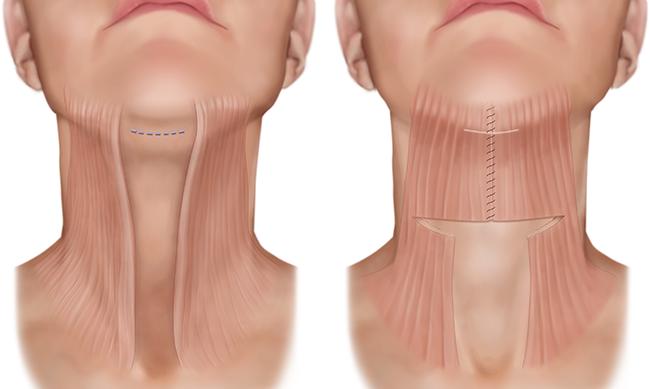 Căng các cơ - cách điều trị đau cổ vai gáy