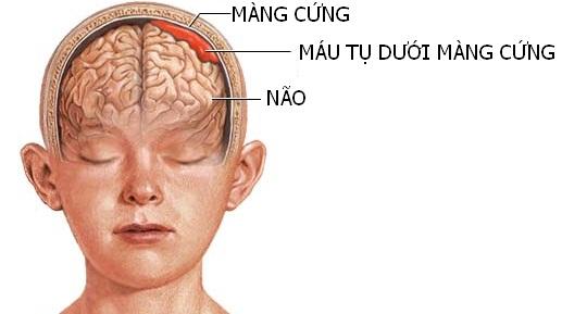 xuất huyết màng não - đau nửa đầu sau là bệnh gì - nhức nửa đầu sau gáy