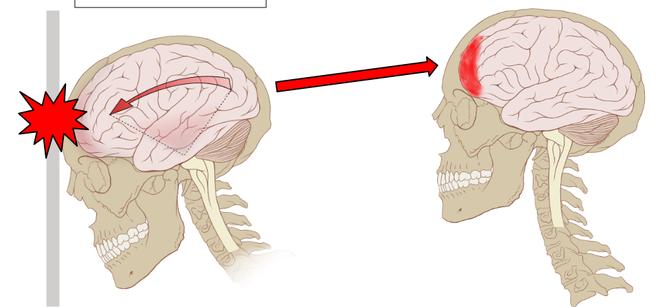 Va đập vùng đầu có thể dẫn đến chấn thương sọ não - đau nửa đầu sau gáy và buồn nôn