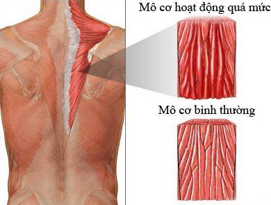 Đau cơ gây đau lưng bên trái phía trên