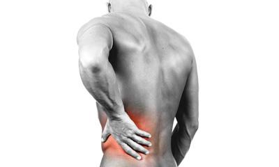 Căng cơ, mỏi cơ - đứng lâu bị đau lưng