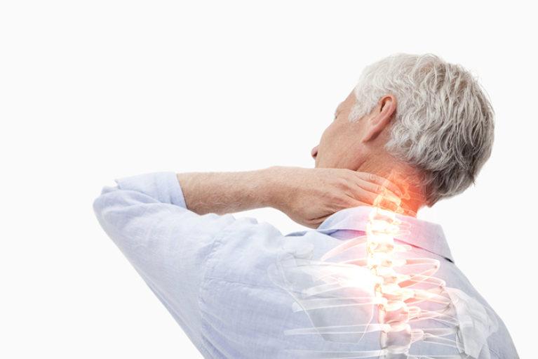 Thoái vị đĩa đệm cổ, thoái hóa đốt sống cổ dễ gây đau đầu và đau lan khu vực cổ vai gáy