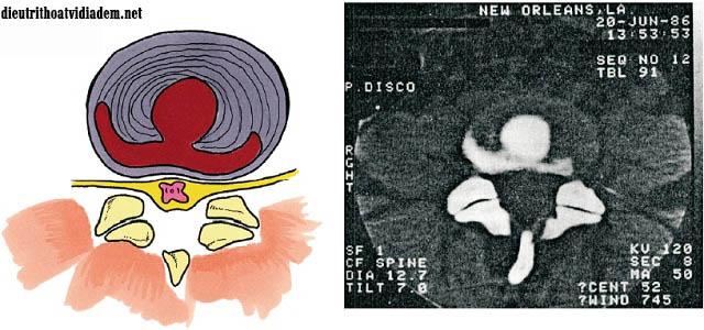 Bị rách vòng xơ đĩa đệm có nguy hiểm không?